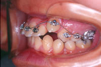 矯正歯科治療開始