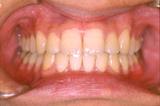 矯正歯科治療開始後 2年1ヵ月
