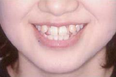八重歯 治療前