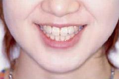 八重歯 治療後