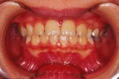 下顎前突 初期治療終了時
