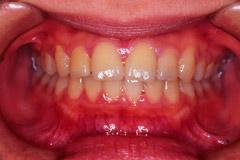下顎前突 最終治療後
